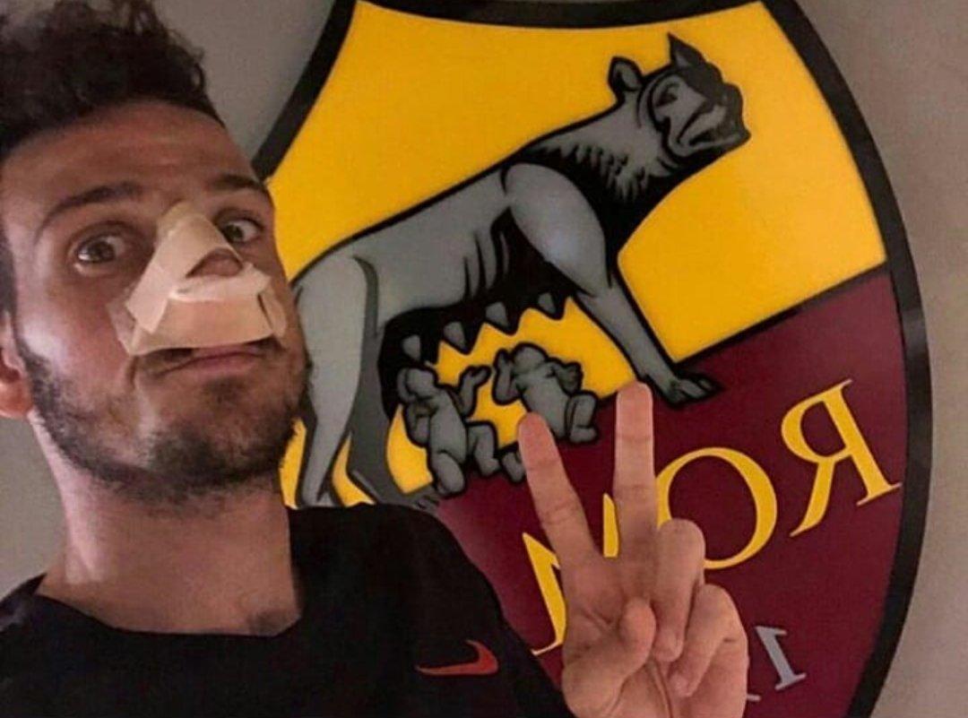 نجم روما يتعرض للإصابة